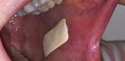 Wundschutz: In der Mundhöhle haftendes Pflaster entwickelt